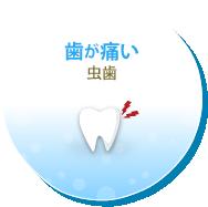 歯が痛い 虫歯