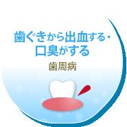 歯ぐきから出血する・口臭がする 歯周病