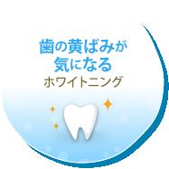 歯の黄ばみが気になる ホワイトニング